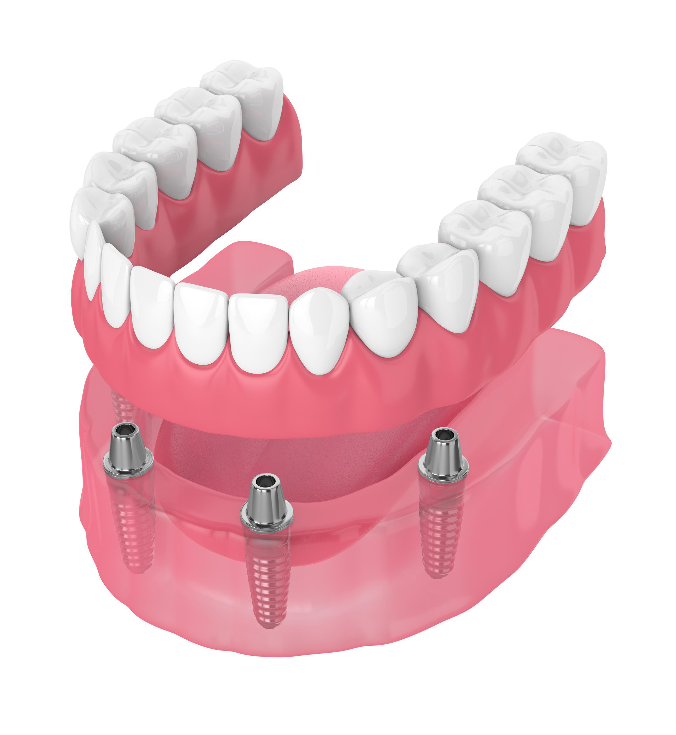 Full Arch Dental Implants in Mankato MN